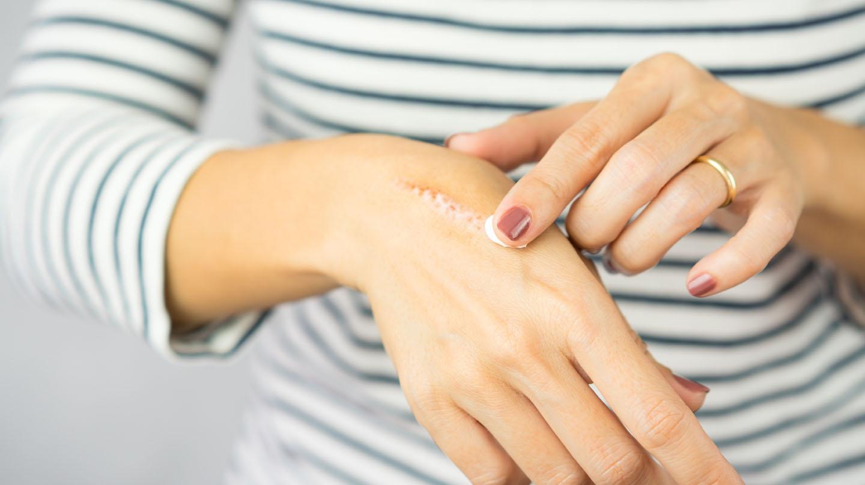 Narben verblassen lassen: Frau cremt Narbe auf der Hand ein.